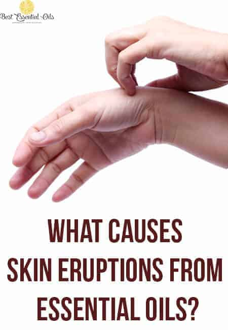 What Causes Skin Eruptions from Essential Oils?