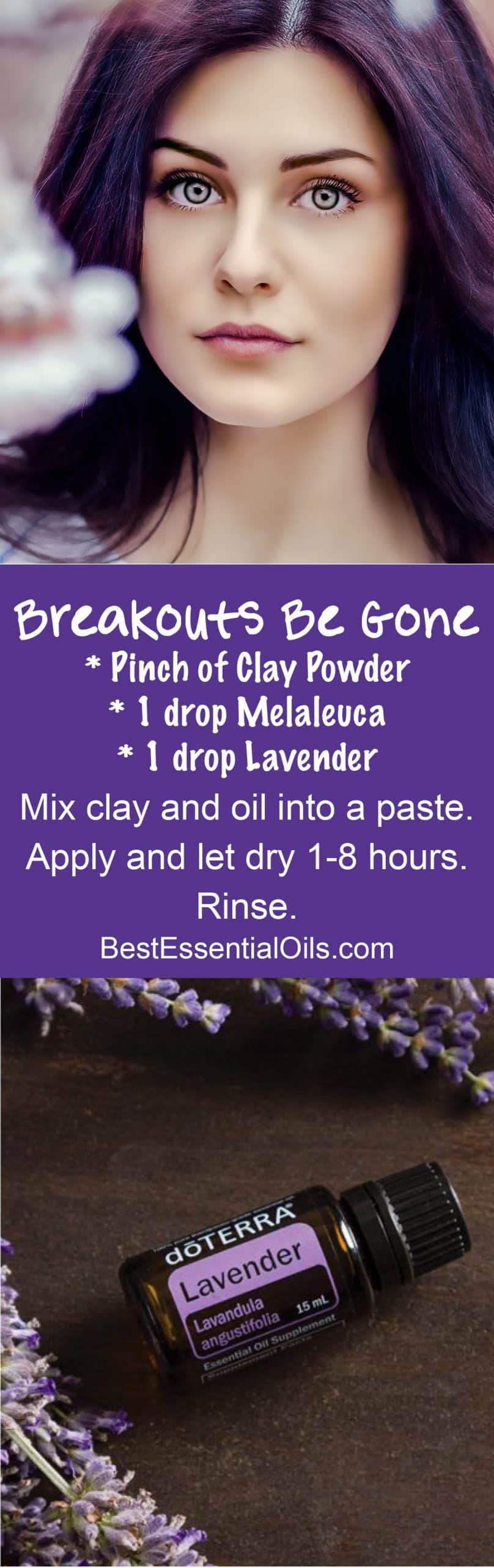 doTERRA Breakouts Be Gone Paste